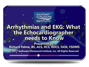 Arrhythmias and EKG: What the Echocardiographer Needs to Know
