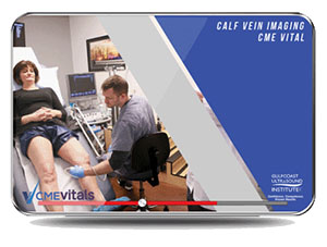 CME - Calf Vein Imaging