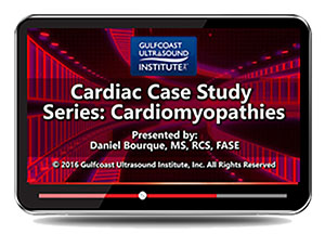 Cardiac Case Study Series: Cardiomyopathies