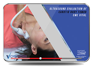 CME - Ultrasound Evaluation of Carotid Body Tumor