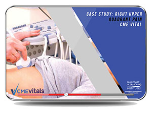 CME - Case Study: Right Upper Quadrant Pain