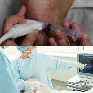 CME - Ultrasound Guided Vascular Access & Regional Anesthesia