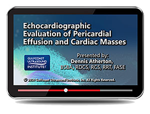 Echocardiographic Evaluation of Pericardial Effusions and Cardiac Masses