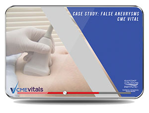 Case Study: False Aneurysms