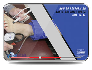 CME - How to Perform an Ankle Brachial Index