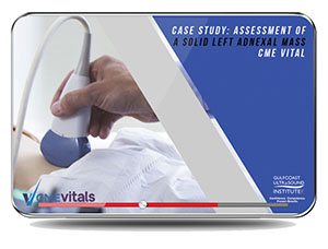 CME - Case Study: Assessment of a Solid Left Adnexal Mass