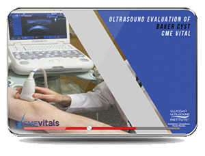 CME - Ultrasound Evaluation of Baker Cyst