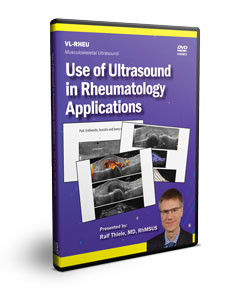 Use of Ultrasound in Rheumatology Applications - DVD