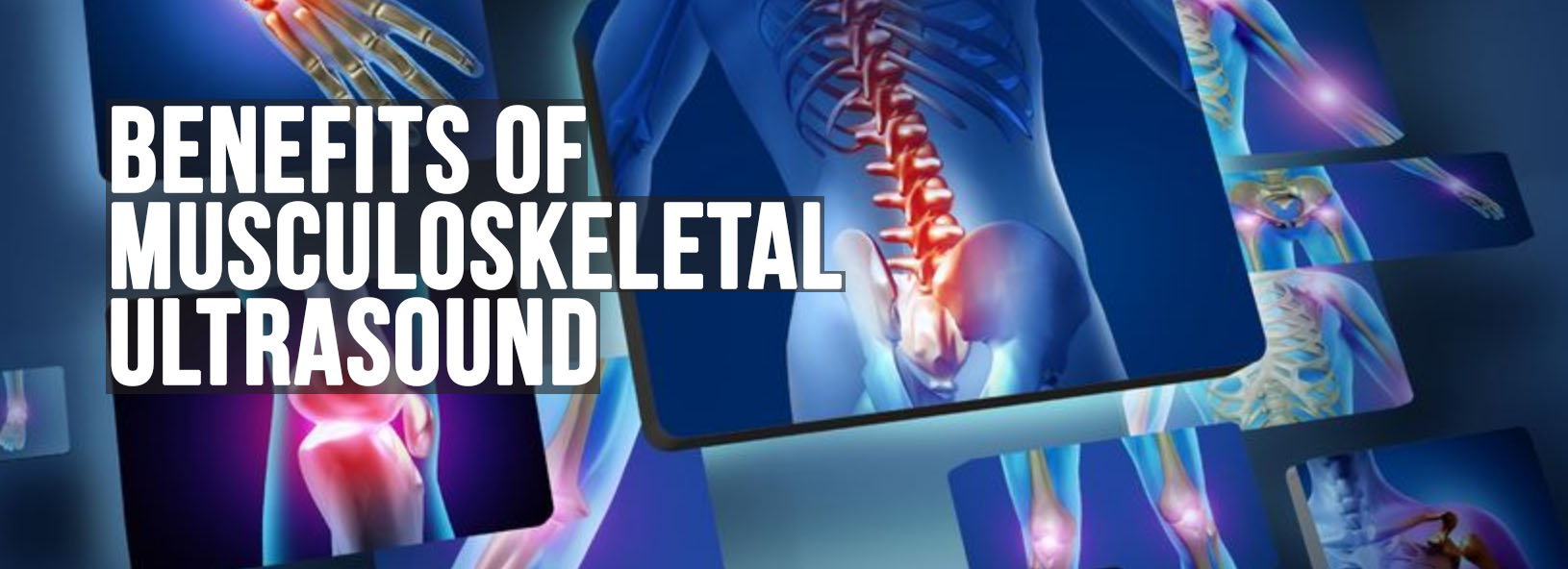 Benefits of Musculoskeletal Ultrasound