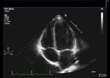 Where is the best live echocardiography hands on course?