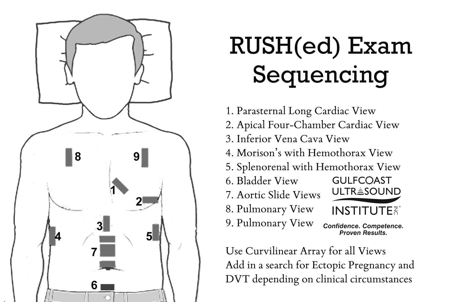 Rapid Ultrasound for Shock & Hypotension (RUSH): A systematic approach to evaluating patients presenting to the ED with undifferentiated hypotension