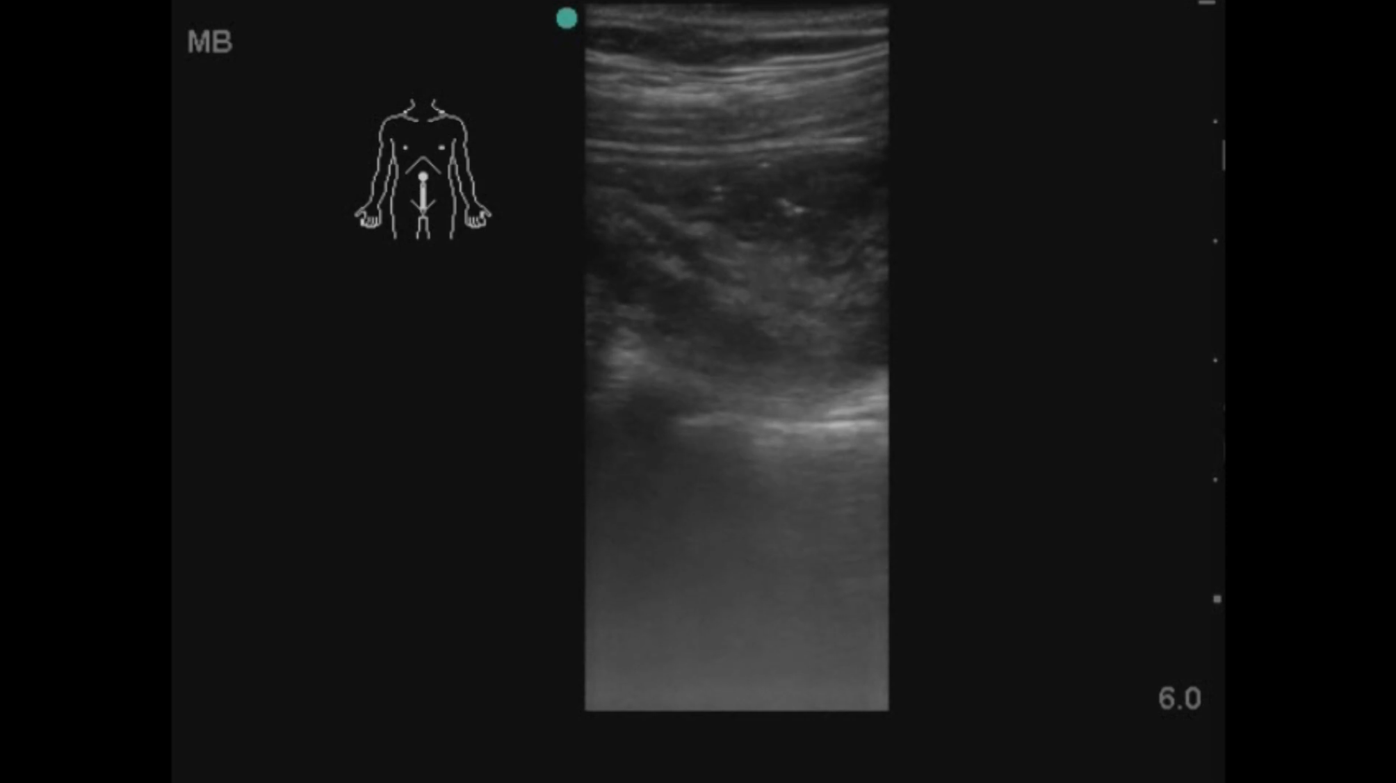 How accurate is point-of-care-ultrasound (POCUS) at diagnosing acute appendicitis?