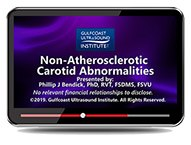 CME - Ultrasound Evaluation of Non-Atherosclerotic Carotid Abnormalities