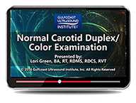 CME - Normal Carotid Duplex/Color Examination